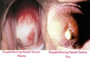 Penyakit-Kencing-Nanah